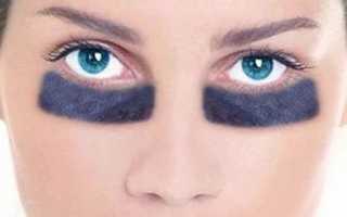 Как избавиться от темных кругов под глазами