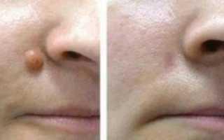 Что такое фиброма кожи