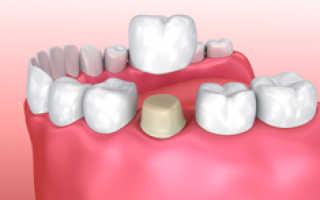 Какие коронки на зуб лучше поставить