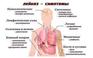 Какие симптомы лейкоза