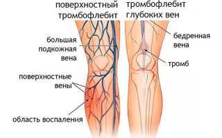 Как лечить тромбофлебит